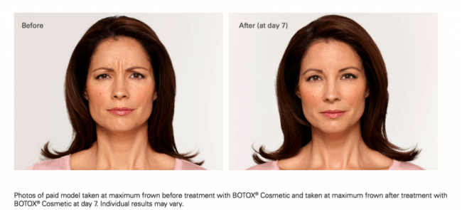 Botox is one of the anti-aging treatments at InShapeMD in Louisville, KY.