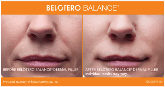 BELOTERO BALANCE Dermal Filler is another anti-aging treatment used at InShapeMD Louisville that fills in the deep grooves of facial wrinkles.