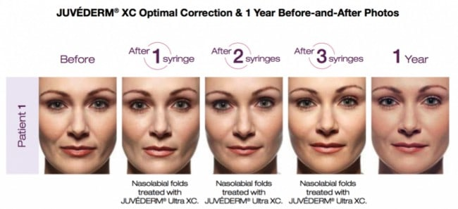 Juvederm is an anti-aging treatment at our Louisville, KY office that plumps lips, fills in wrinkles and smoothes the skin.