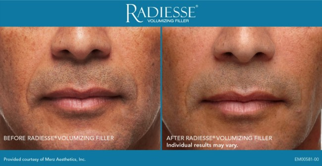 InShapeMD Louisville uses Radiesse which is a dermal filler used to treat wrinkles and folds.