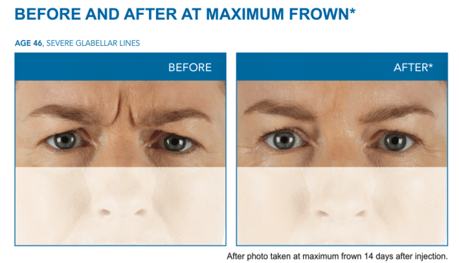 One of InShapeMD Louisville's anti-aging treatments is Xeomin, a cosmetic anti-wrinkle injectable.